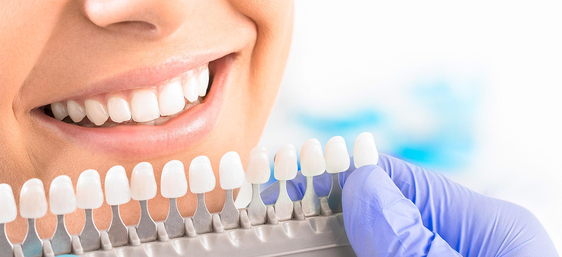 Zahnarzt Dr. Marco Eck - Ästhetik 1
