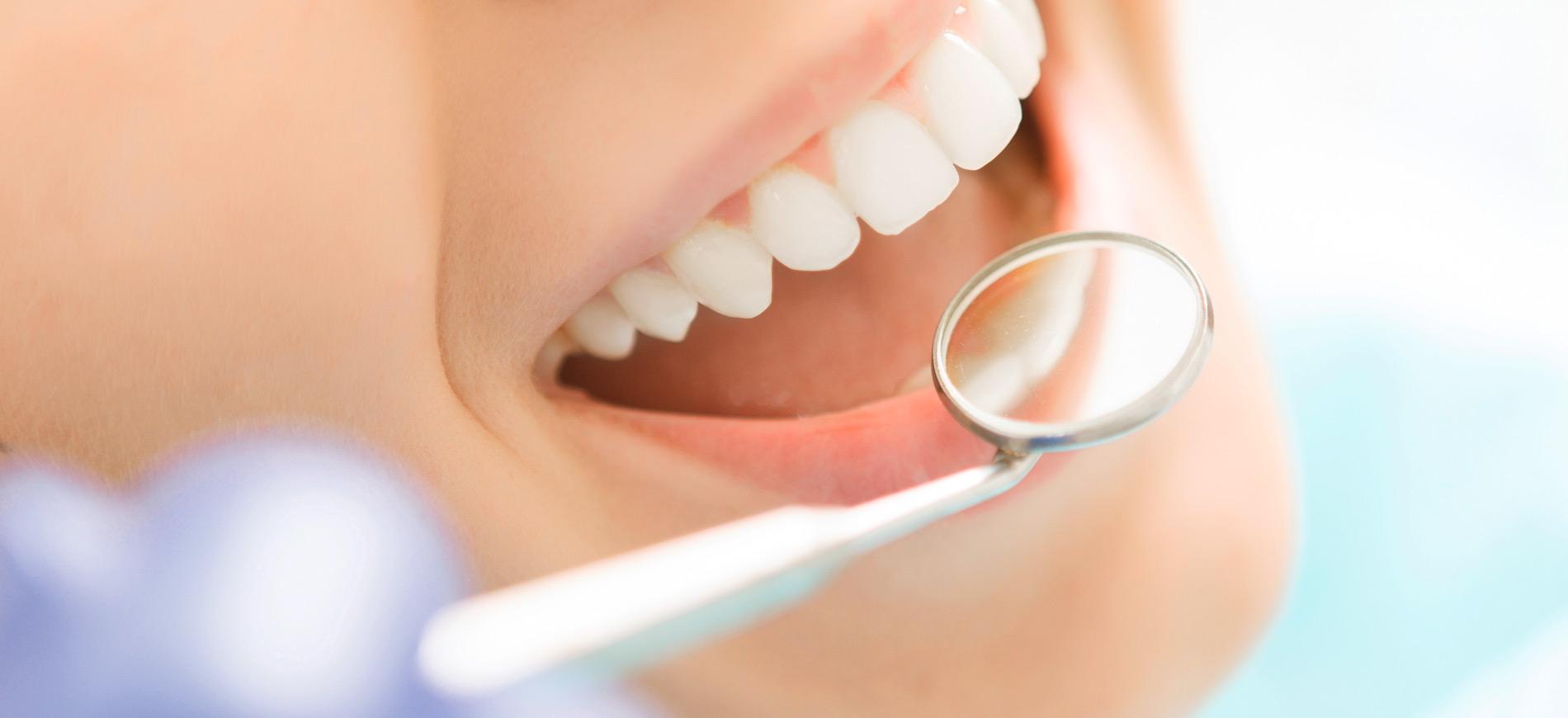 Zahnarzt Dr. Marco Eck - Bleaching 1